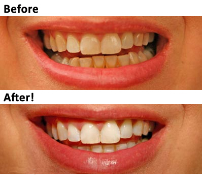 mobile-teeth-whitening2.jpg